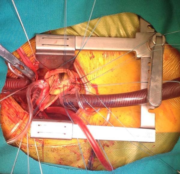 Cirugía de la Aorta, y Endovascular