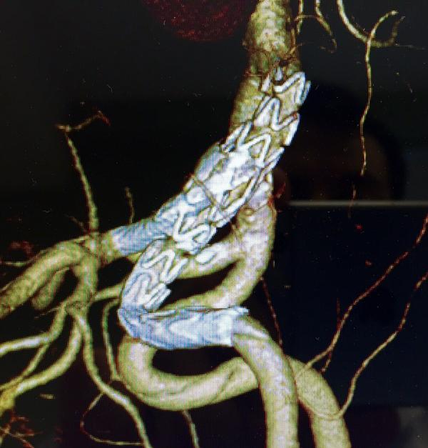 Cirugía Vascular periférica y Endovascular